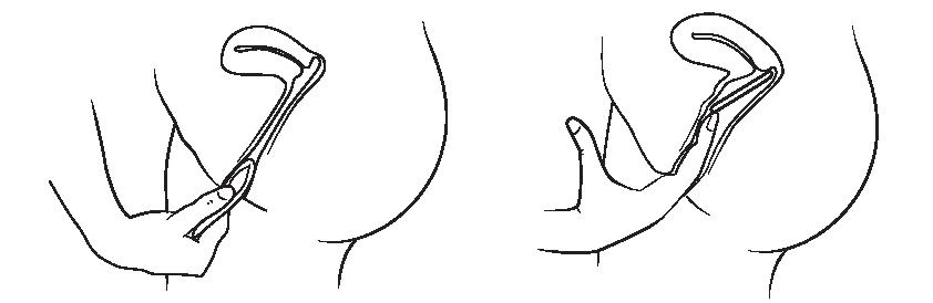 Faraantiga siilka la iska galiyo] sex-i ch / sexual health info